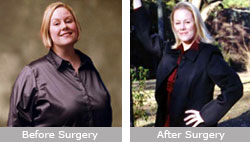 Tanya McGill: Gastric Bypass Surgery
