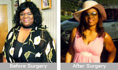 Dionne Stephens: Gastric Bypass Surgery