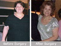 Lisa Wardlaw: Gastric Bypass Surgery