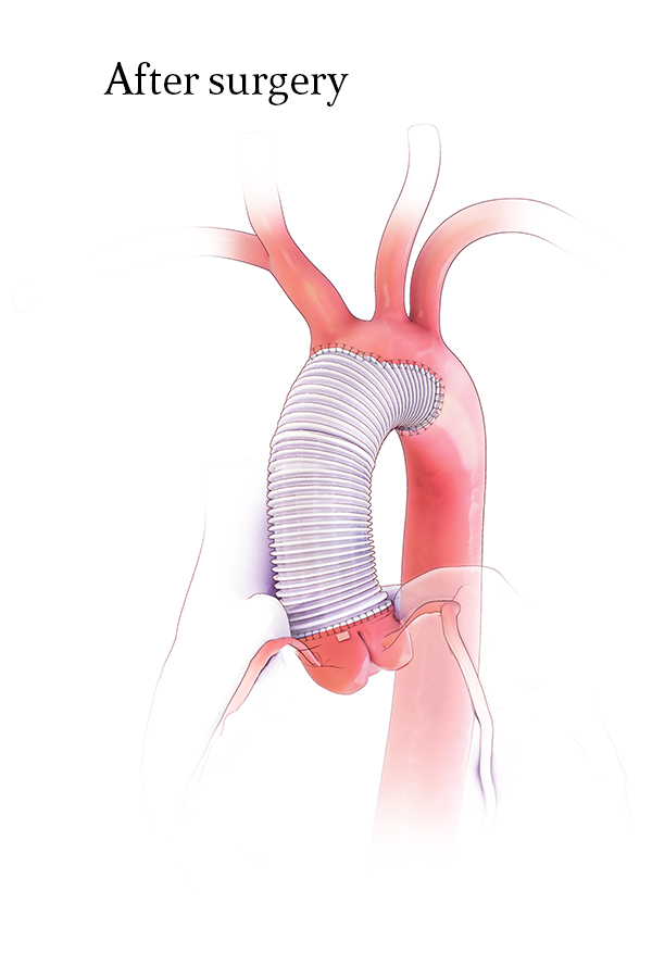 Aortic Valve Resuspension and Ascending Aorta Replacement with Hemiarch Replacement Post