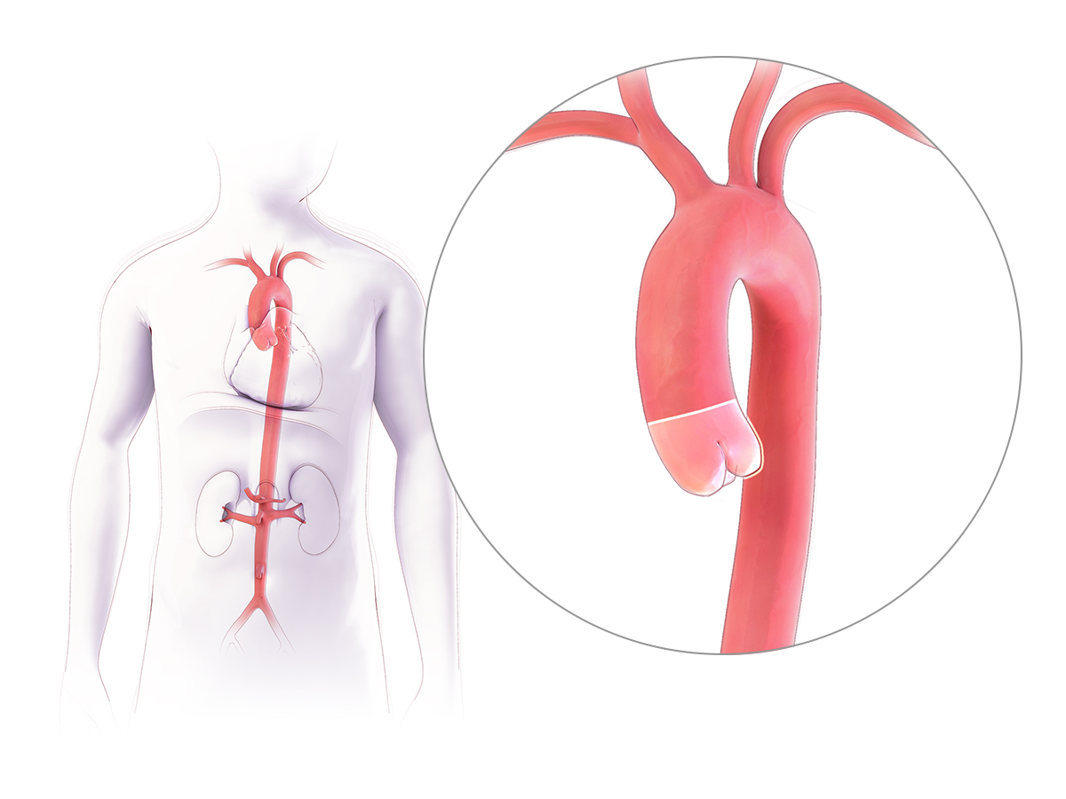 Anatomy Aortic Root