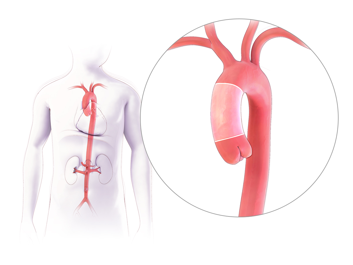 Your Ascending Aorta and Aortic Arch