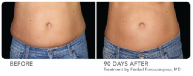 CoolSculpting® waist before and after