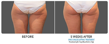CoolSculpting® inner thigh before and after