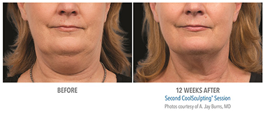 CoolSculpting® neck before and after