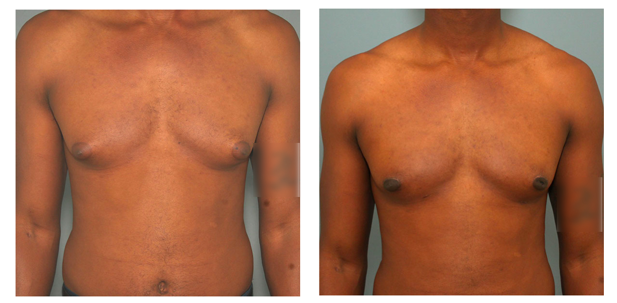 Gynecomastia Male Breast Reduction