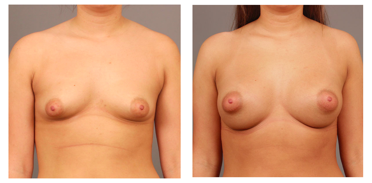 Breast Augmentation Front Pt 30
