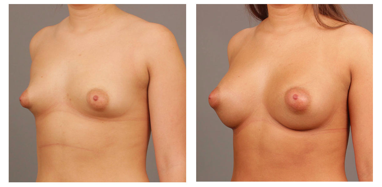 Breast Augmentation Side Pt 30