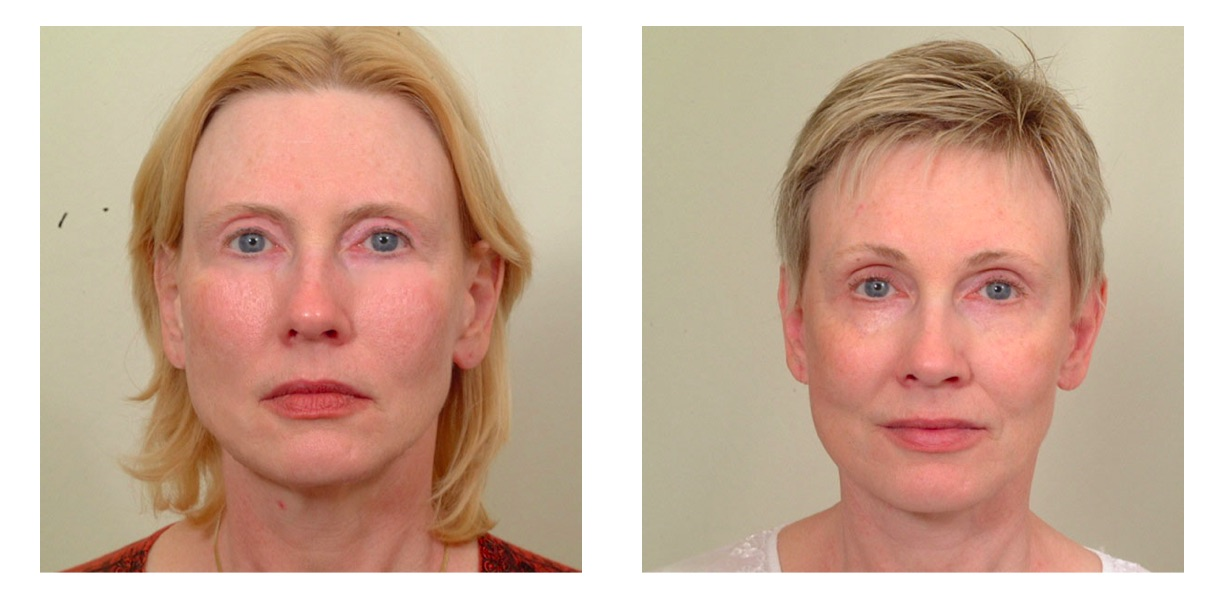 How long to recover from blepharoplasty? » Eyelid Surgery ... |Lower Blepharoplasty Recovery Photos