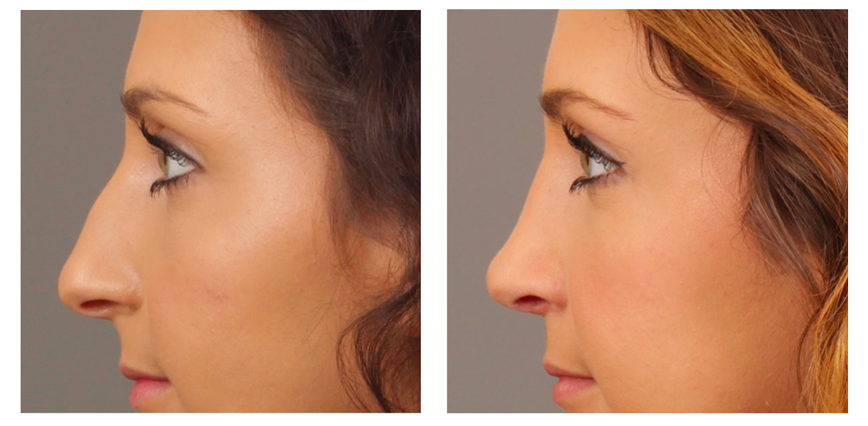 Rhinoplasty Side Pt 31