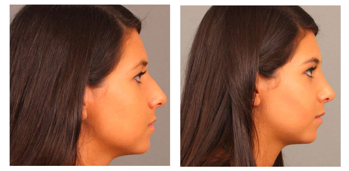 Rhinoplasty Side Pt 33