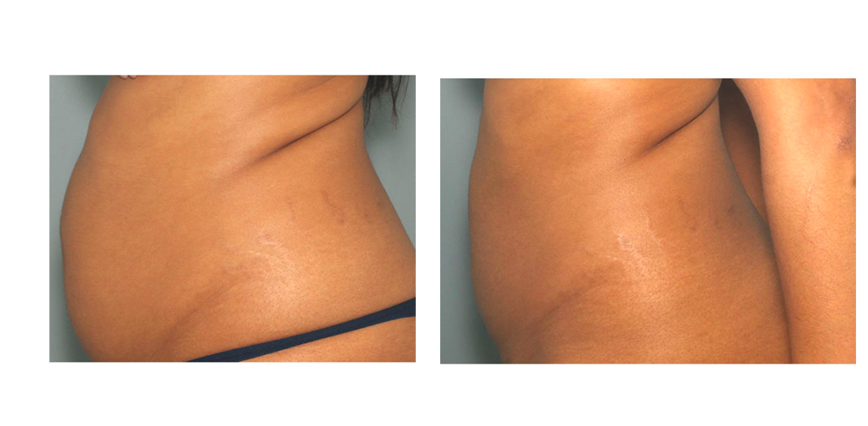 Liposuction Turkey - Save up to 75% OFF Lipo Packages