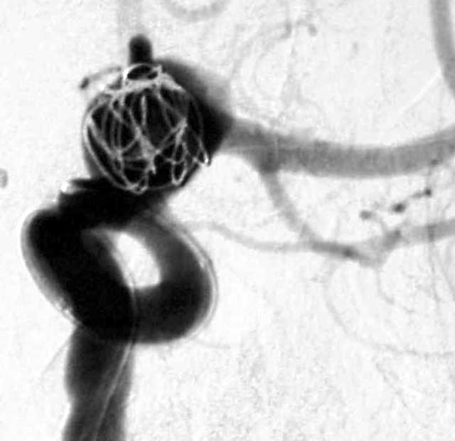 Angiogram of first coil entering the aneurysm