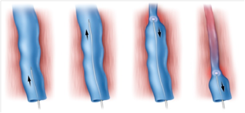 Endovenousr Laser Treatment