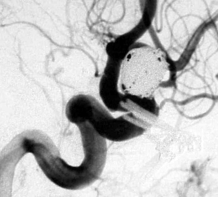 Angiogram ofcoils placed inside the aneurysm