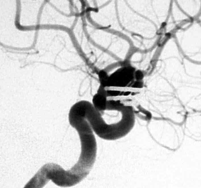 Angiogram of large intracranial aneurysm arising from the left internal carotid artery