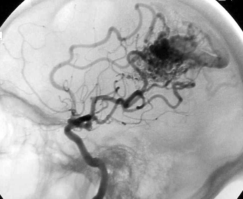 Angiogram showing abnormal tangle of blood vessels following injection